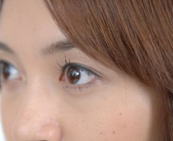 ニキビの白い膿と芯の違いは?それぞれ対処法を解説